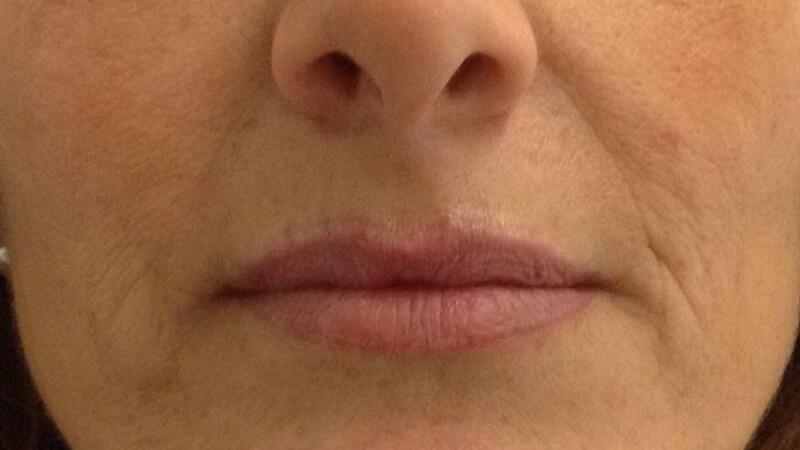 Trucco semipermanente alle labbra Bergamo - prima - web
